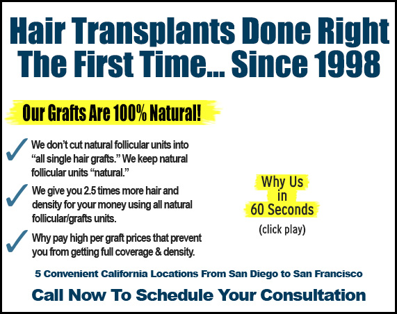 hair transplants, hair restoration